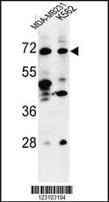 Anti-TSPEAR Rabbit Polyclonal Antibody