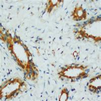 Immunohistochemical analysis of formalin-fixed paraffin embedded Human Mammary Cancer Tissue using PPP2CA antibody.