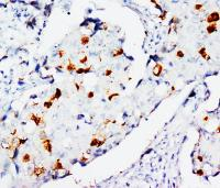 Immunohistochemical analysis of paraffin-embedded human mammary cancer using STAT3 antibody